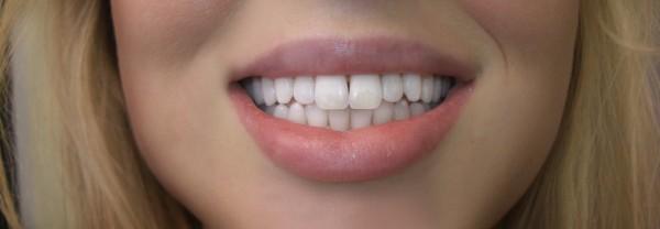 brilliant smile tandblekning recension